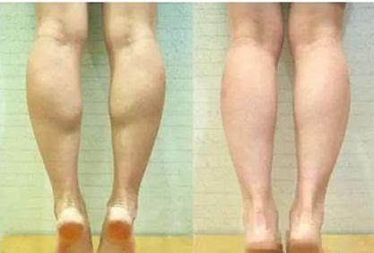 小腿抽脂_到底是打瘦腿针好,还是抽脂瘦腿好?